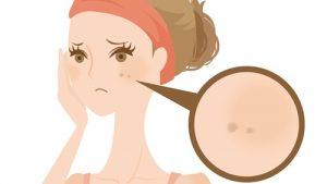 肌のトラブル「シミ」
